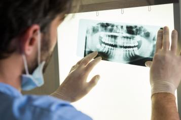 Dentist looking at dental x ray