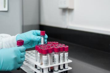 A rack of blood testing tubes